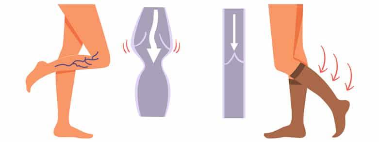 Stödstrumpa blodcirkulation